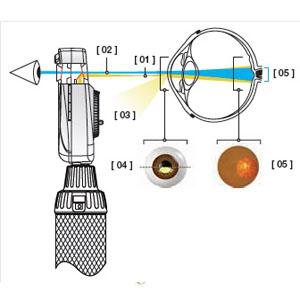 نحوه عملکرد افتالموسکوپ