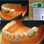 Digital Tooth 02