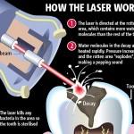 laser-dentistry1