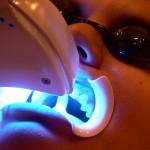 san-francisco-tooth-whitening