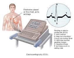 تفسیر ECG به طور کامل بخش دوم-الکتروکاردیوگرافی-مدرسه مهندسی پزشکی-iranianbme.com