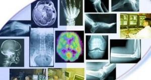 رادیولوژی-مدرسه مهندسی پزشکی-iranianbme.com