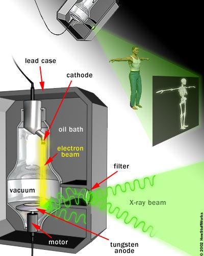 عکس-برداری-رادیولوژی-مدرسه-مهندسی-پزشکی-iranianbme.com-114