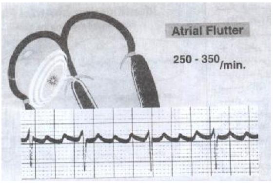فلوتر دهلیزی-مدرسه مهندسی پزشکی-iranianbme.com