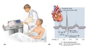 -همه چیز در مورد الکتروکاردیوگرافی-مدرسه مهندسی پزشکی-iranianbme.com