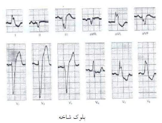 خصوصیات بلوك شاخه چپ-مدرسه مهندسی پزشکی ایران