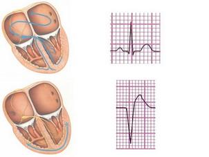 تفسیر ECG به طور کامل بخش چهارم-ریتم های بطنی-مدرسه مهندسی پزشکی-iranianbme