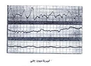 شکل موج فیبریلاسیون بطنی-مدرسه مهندسی پزشکی-iranianbme.com