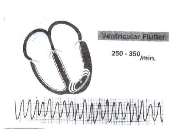 فلوتر بطنی-مدرسه مهندسی پزشکی-iranianbme.com
