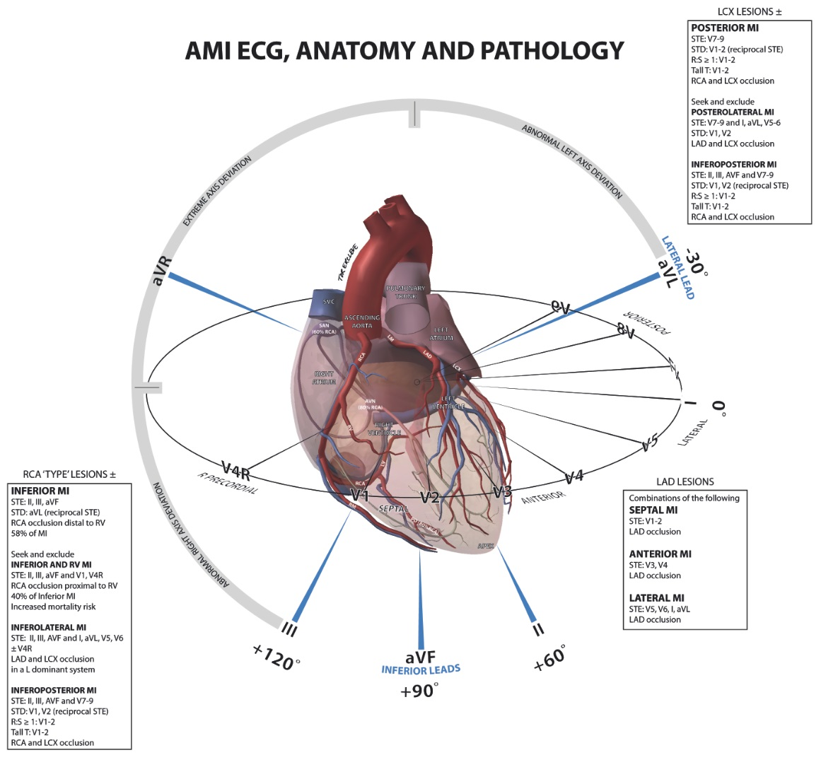 تفسیر ECG به طور کامل بخش ششم-ECG-Anatomy-مدرسه مهندسی پزشکی